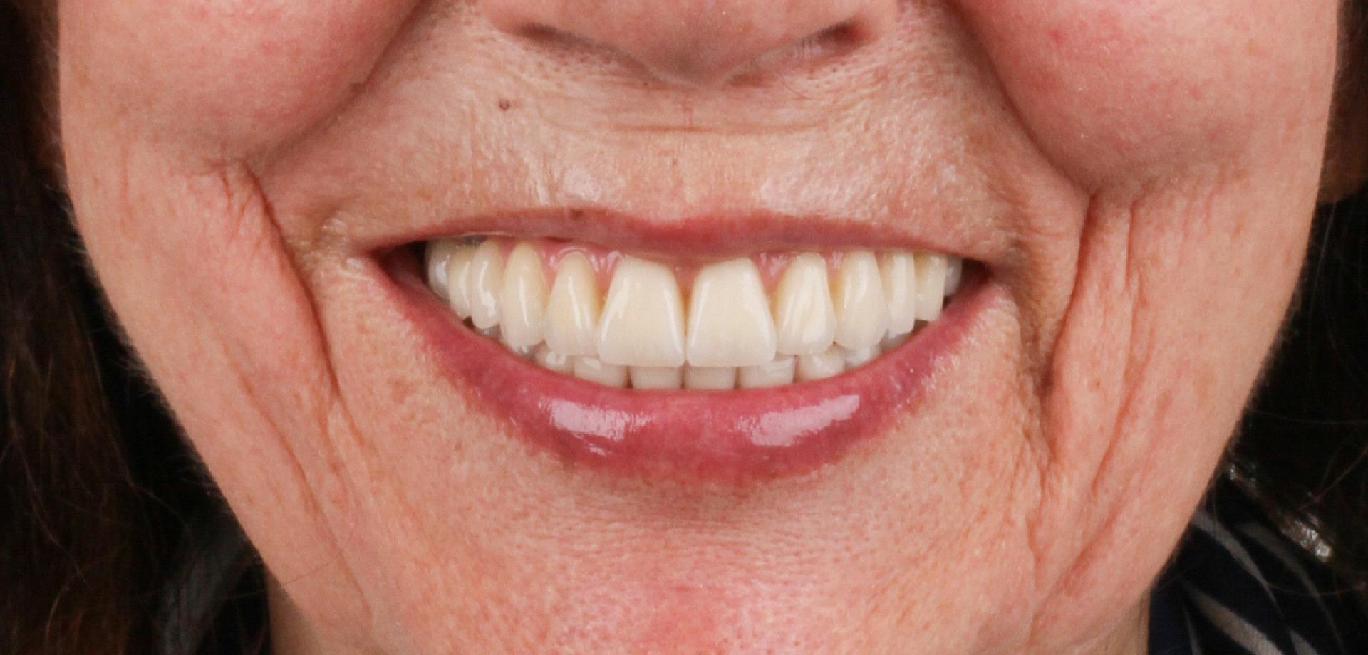 caso-2-implantes-boca-destaque