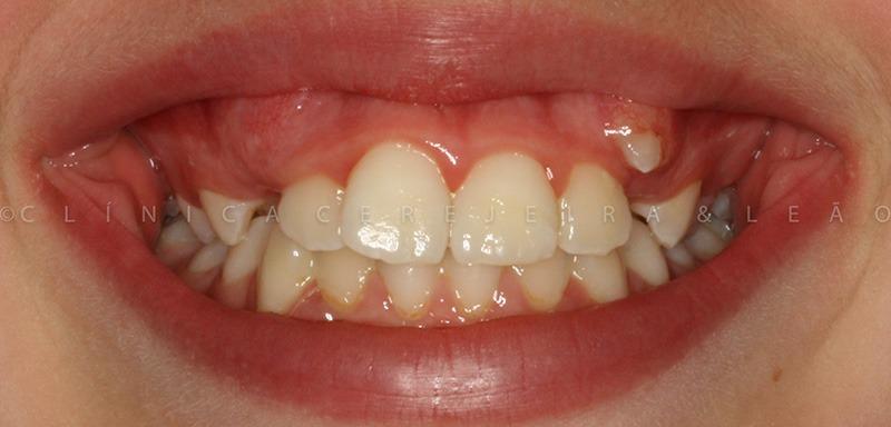 ortodontia_caso2_antes