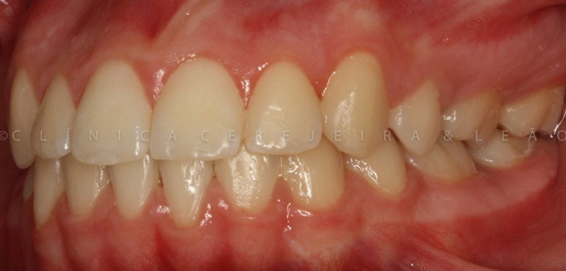 ortodontia_caso2_antes5