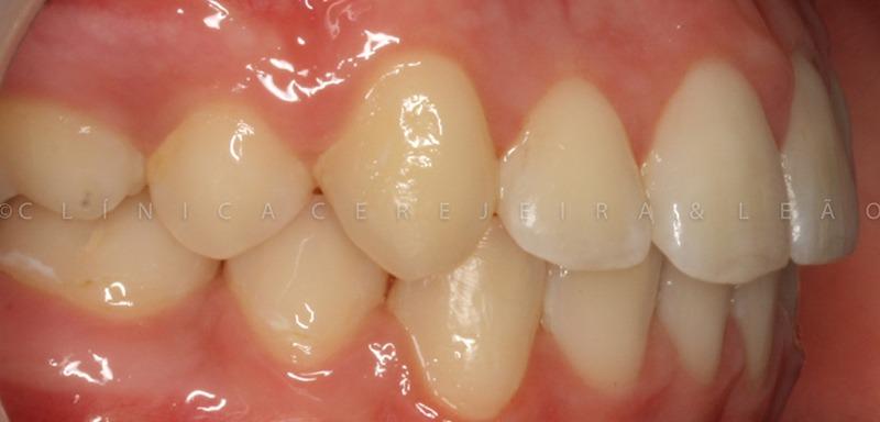 ortodontia_caso2_depois2
