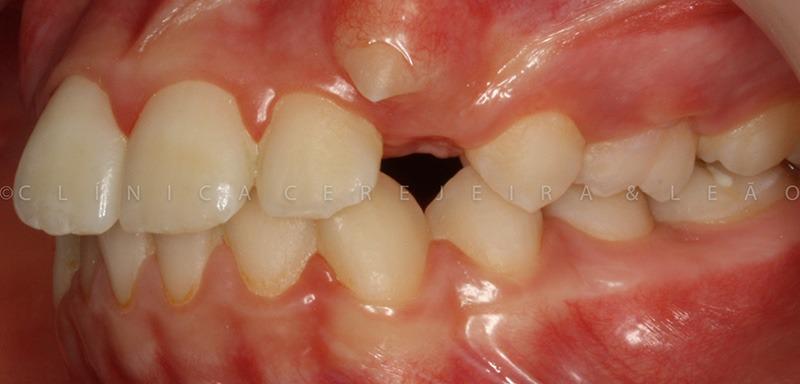 pessoa_ortodontia_caso2-antes1