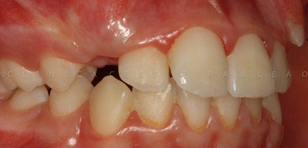 pessoa_ortodontia_caso2-antes2