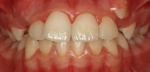 pessoa_ortodontia_caso2-antes3