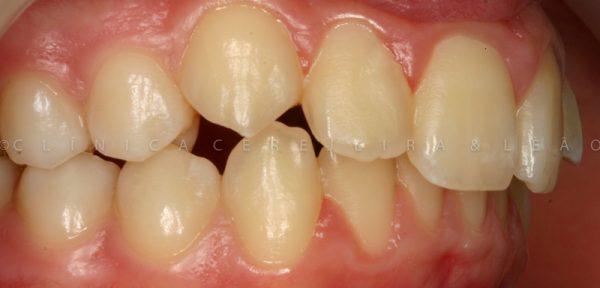 ortodontia_caso1-antes2