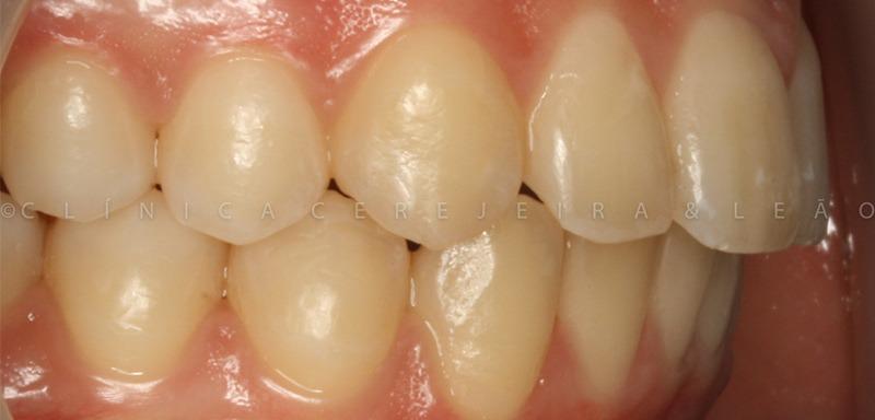 ortodontia_caso1-depois2