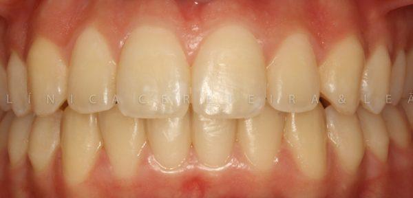 ortodontia_caso1-depois3