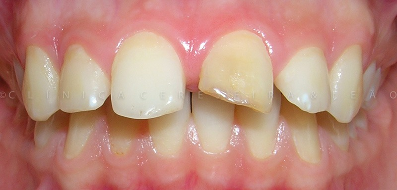 ortodontia_caso3_antes1