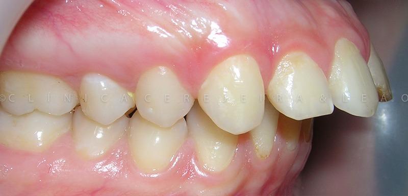 ortodontia_caso3_antes2