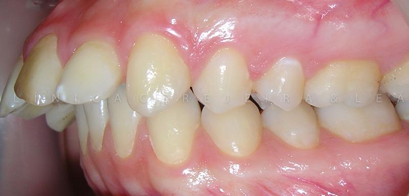 ortodontia_caso3_antes3