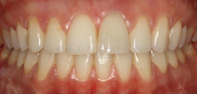 ortodontia_caso3_antes6