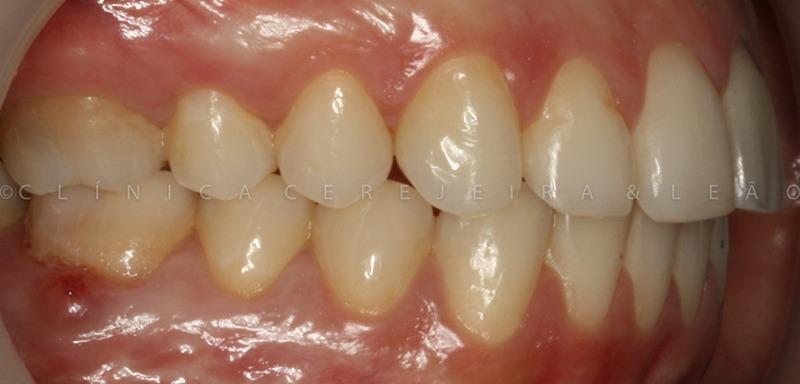 ortodontia_caso3_depois2