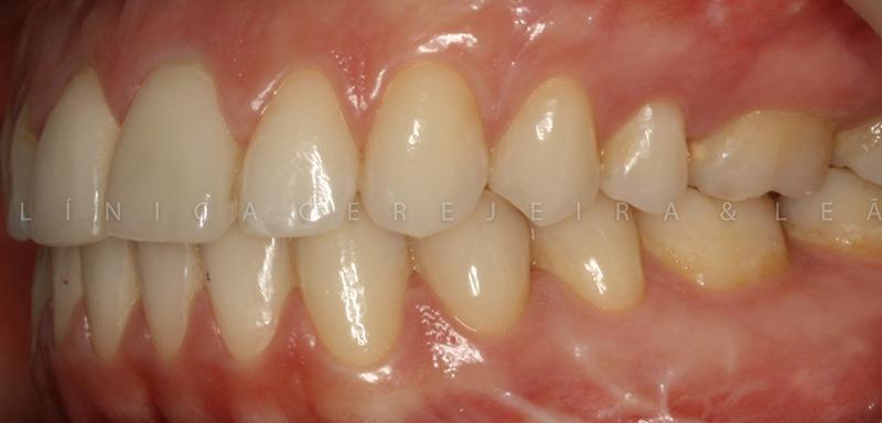 ortodontia_caso3_depois3