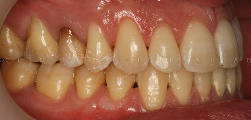 ortodontia_caso4_depois5