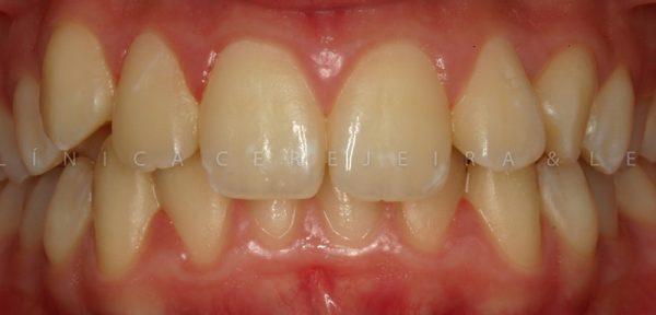 pessoa_ortodontia_caso1-antes1