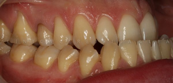 pessoa_ortodontia_caso4_antes3