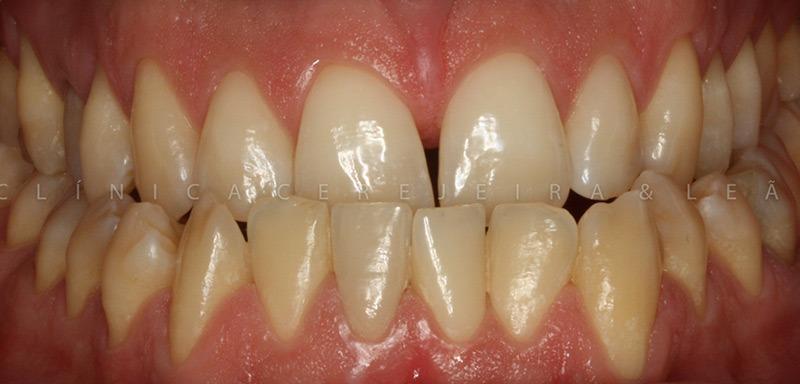 pessoa_ortodontia_caso4_antes4