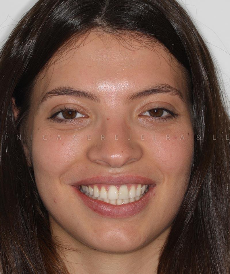 pessoa_ortodontia_caso3_antes