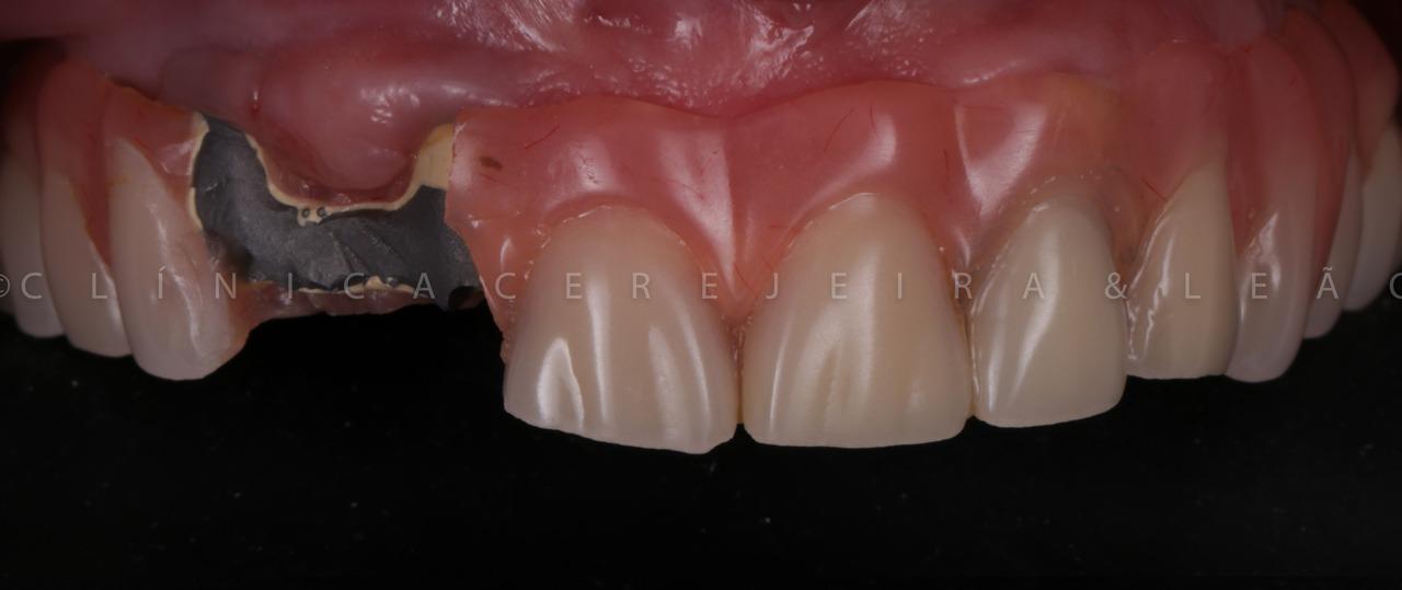 caso-1-boca-antes-implantes