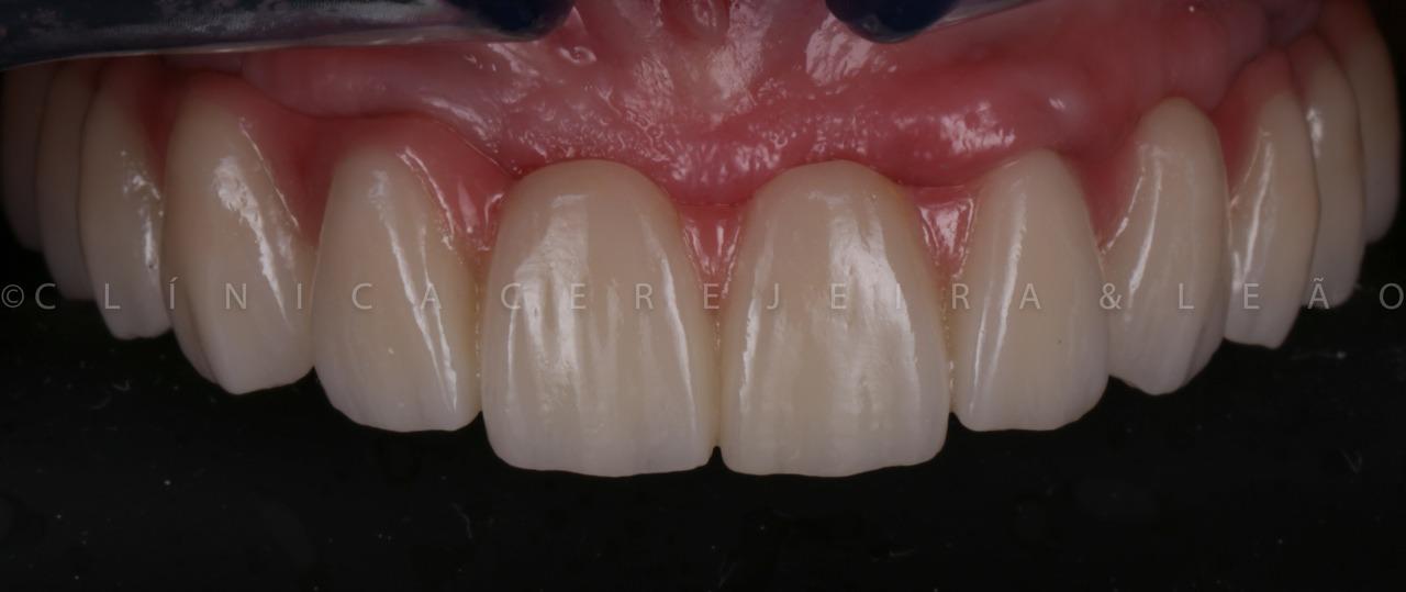 caso-1-boca-depois-implantes