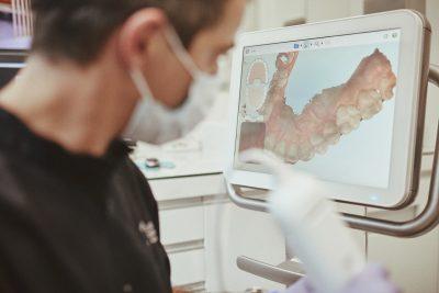 workflow digital implantes dentários