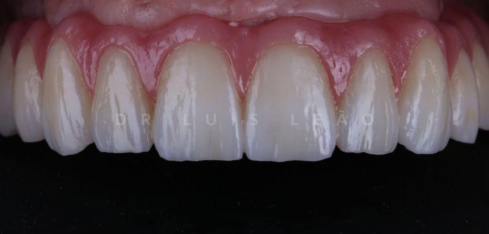 Reabilitação Oral - Dr. Luís Leão - Clínica Cerejeira & Leão