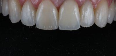 Reabilitação Oral - Dr. Luís Leão