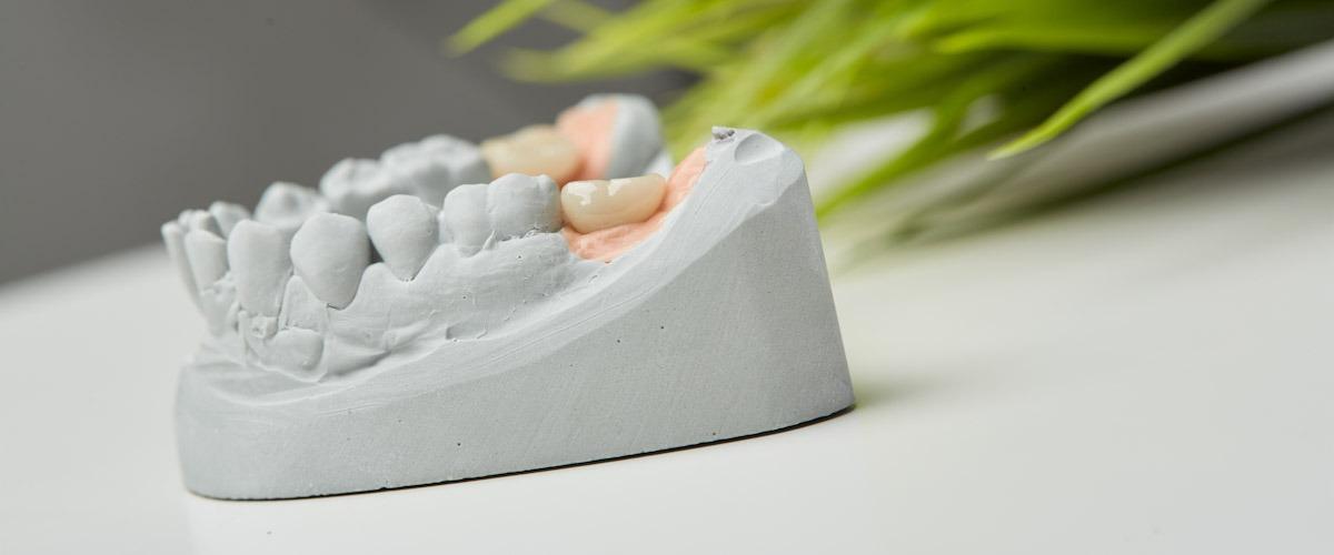 coroa dentária pronta