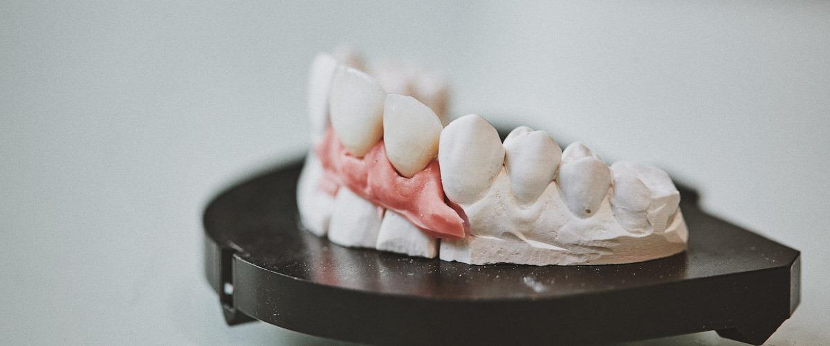 facetas dentárias foto artistica